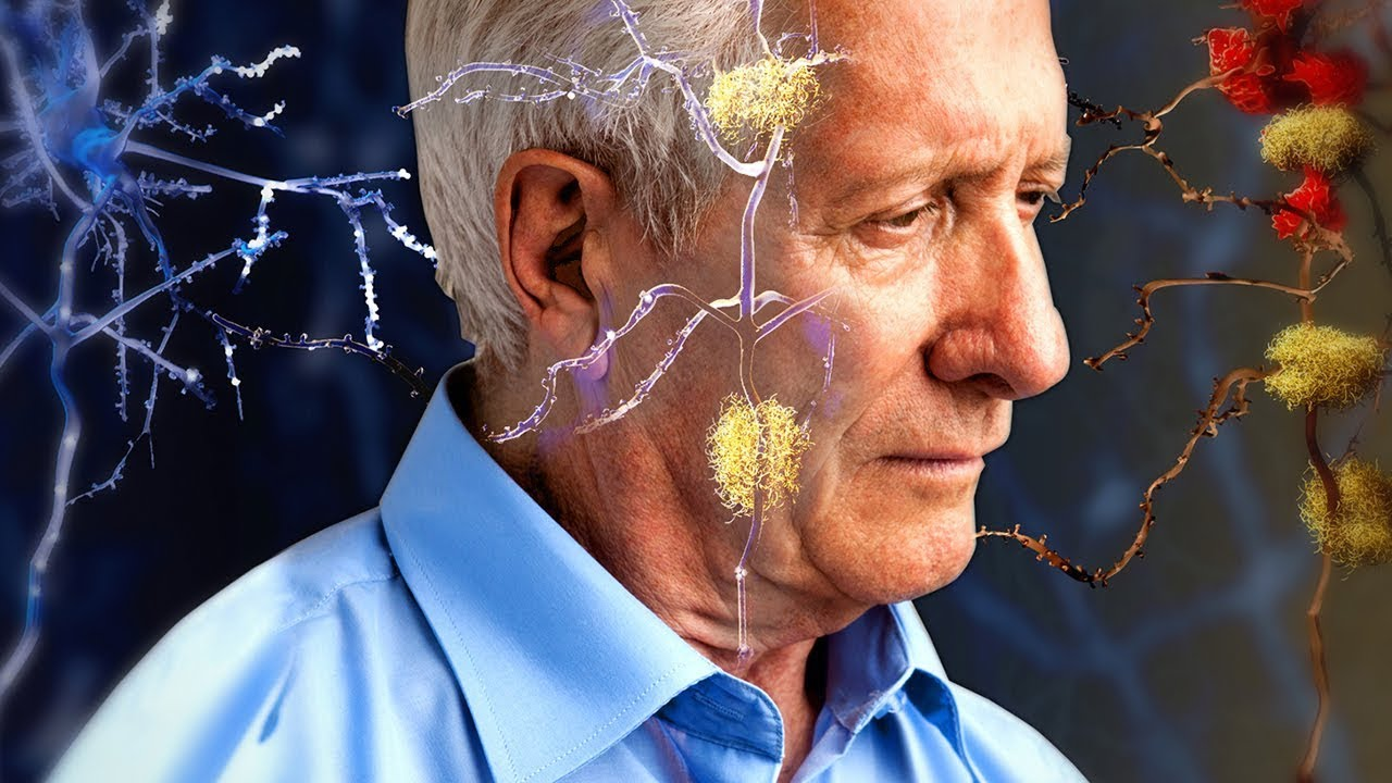 What Are The Stages Of Alzheimer's Disease?