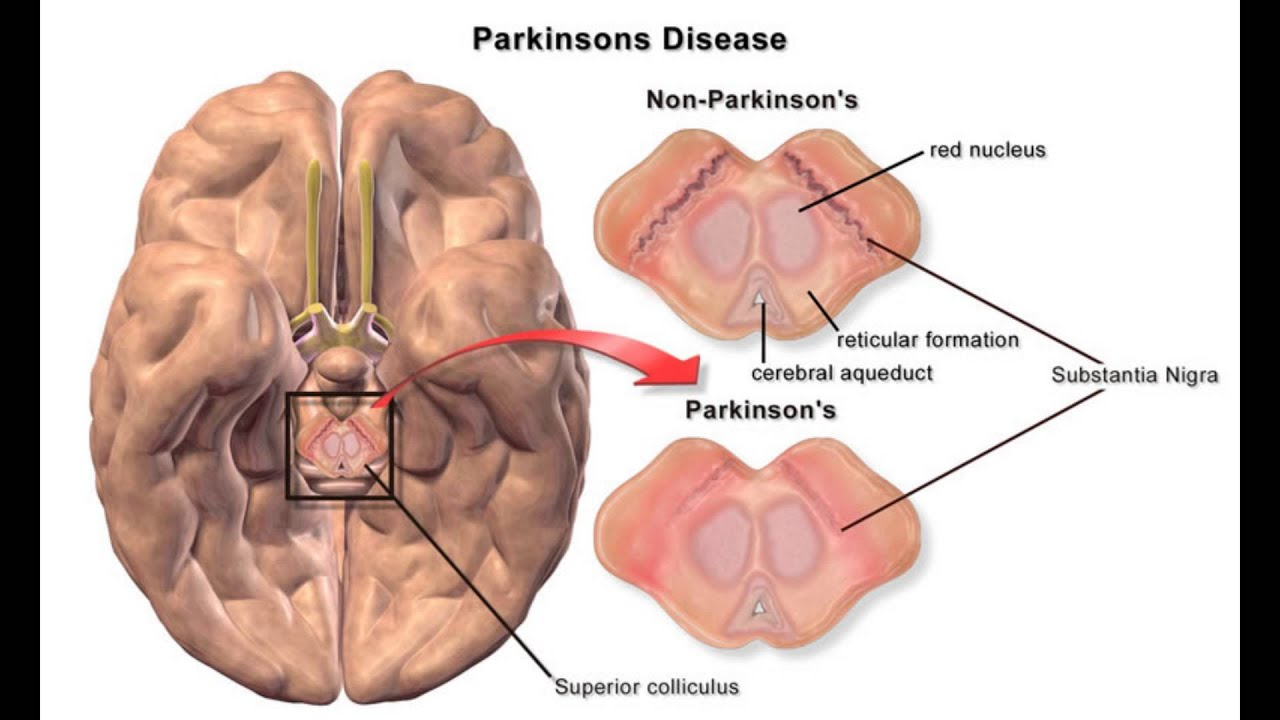 Who Gets Parkinson's Disease